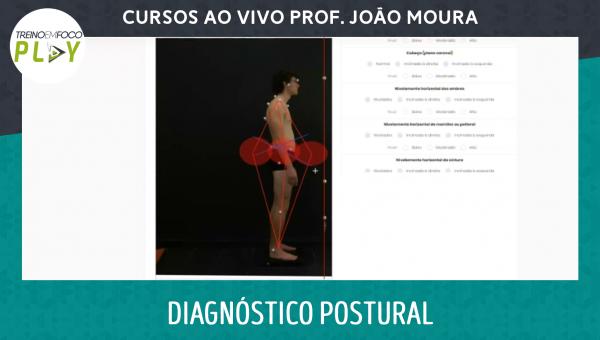 Diagnóstico Postural por Simetrografia