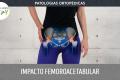 Patologias Ortopédicas - Impacto Femoroacetabular